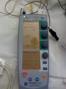 PacemakerTemp1