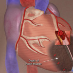 Chest Pain visual